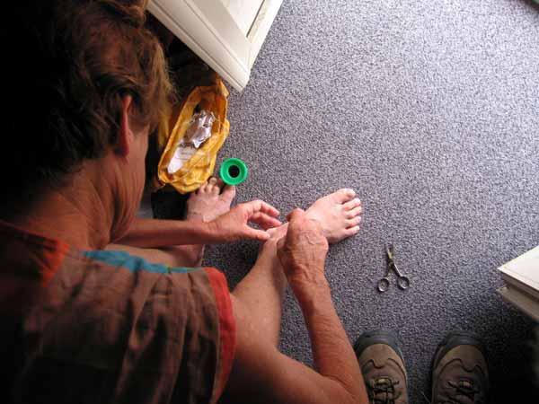 Walking in France: Foot repairs before leaving our hotel
