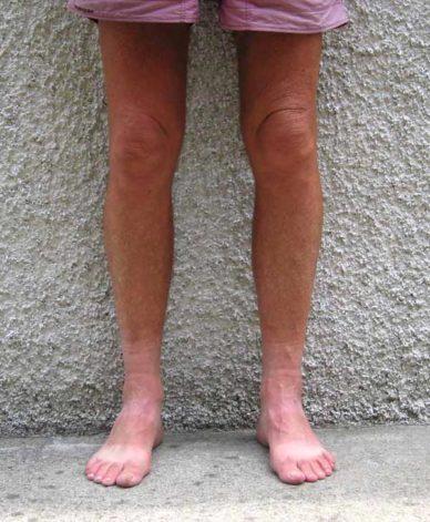 Walking in France: A walker's suntan